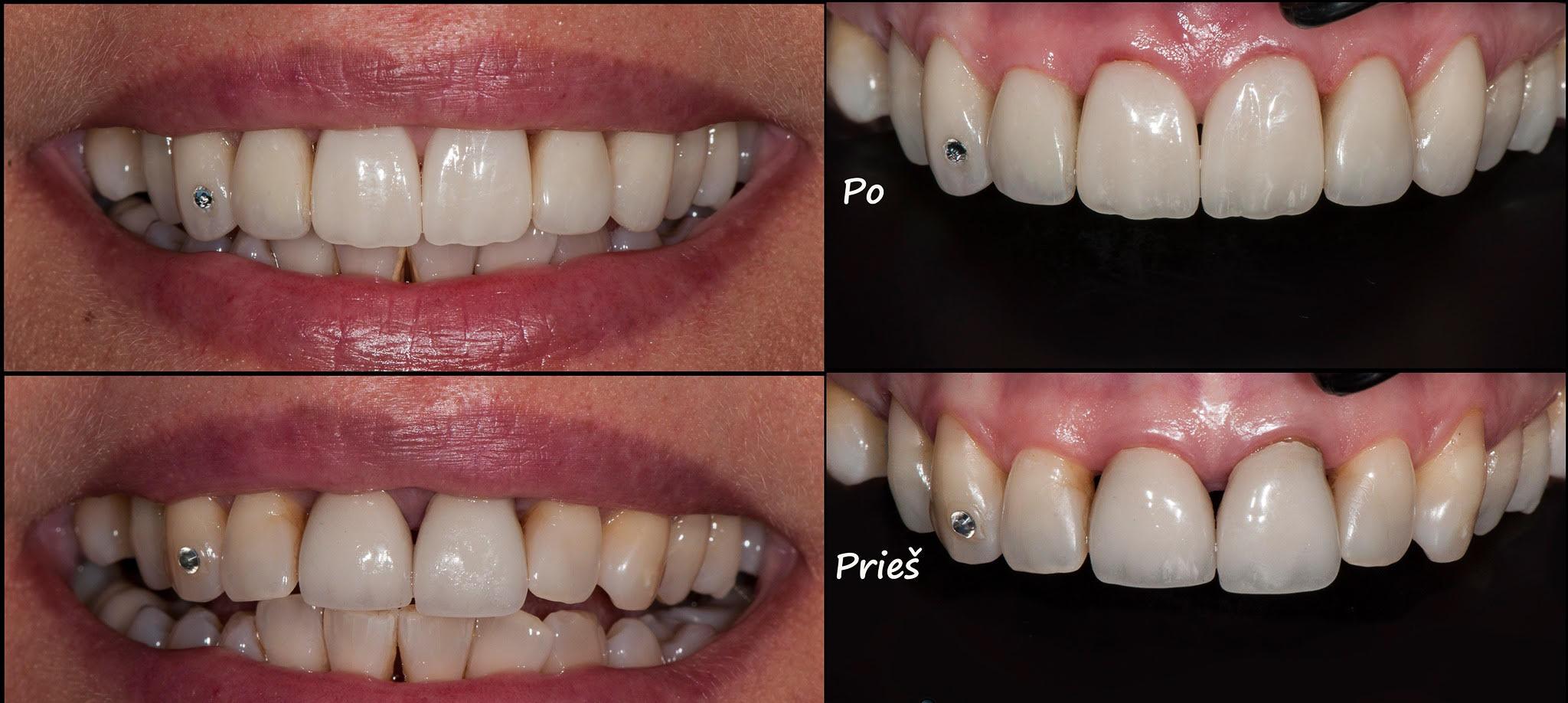 Priekiniai dantys prieš ir po