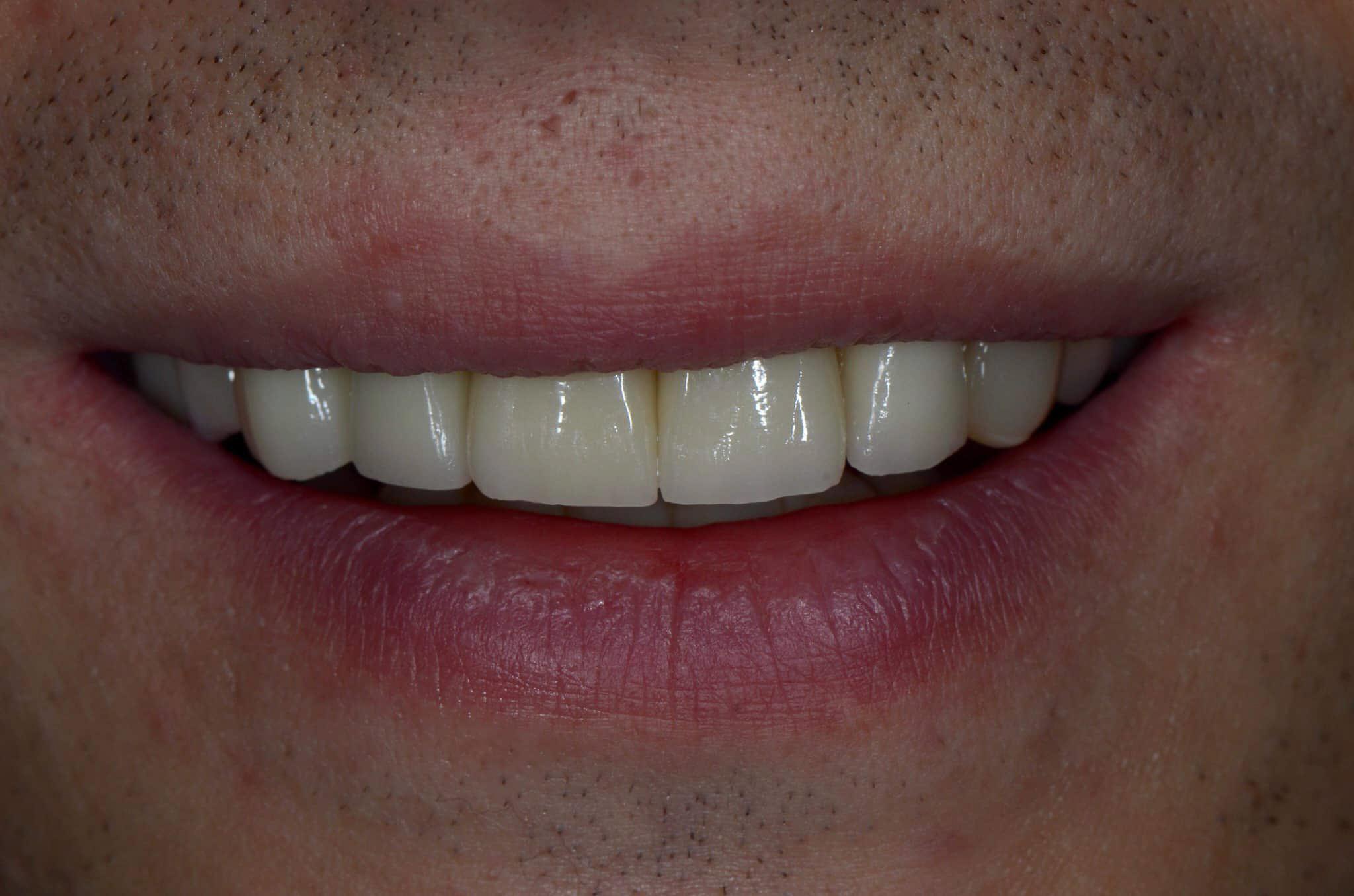 Priekiniai dantys