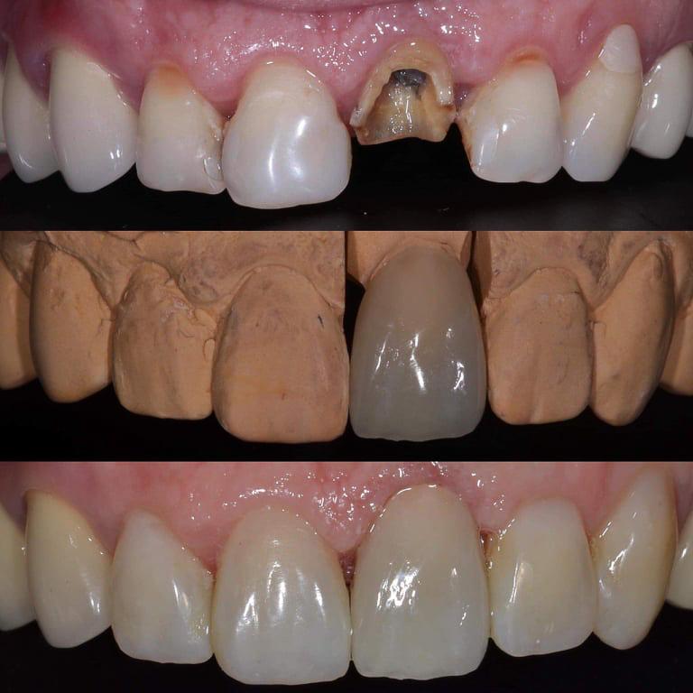Priekinių dantų restauracija
