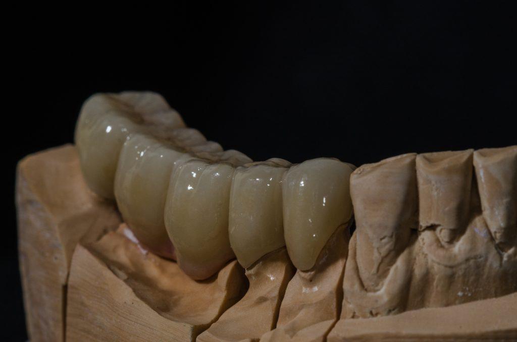 Neišimami dantų protezai