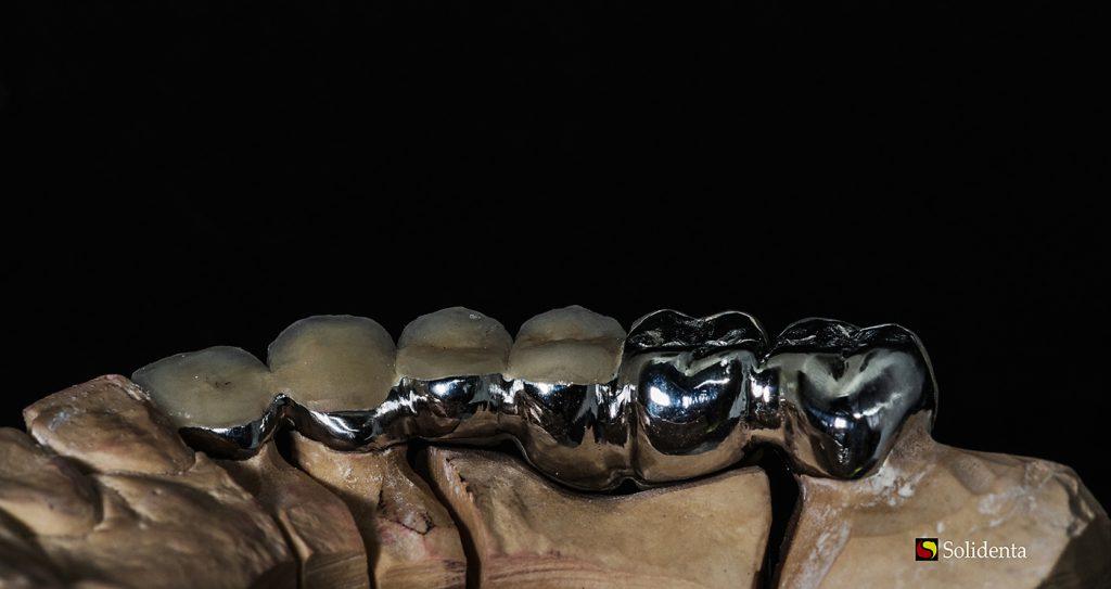 Metalo keramikos dantų protezas