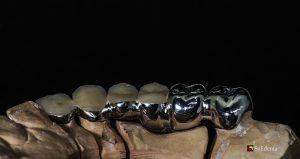 Dantu technikas, dantu protezu gamyba, kaina sutartine, metalo keramikos vainikėlis