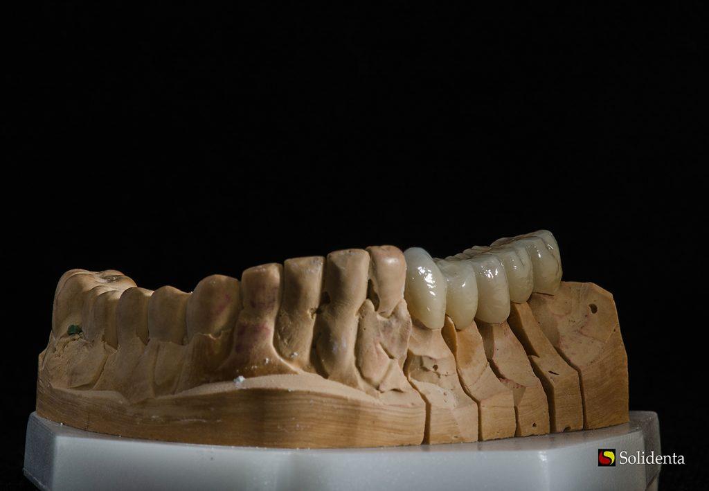 Cirkonio keramikos dantų protezas