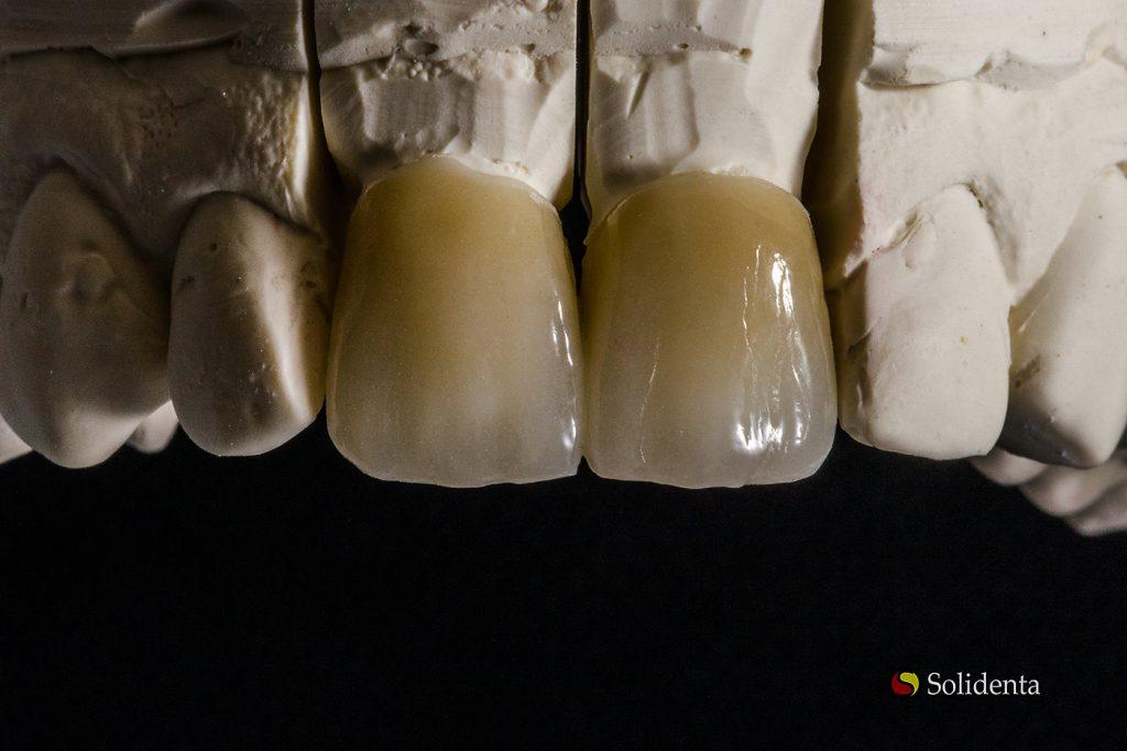 Priekiniai dantys cirkonio keramika