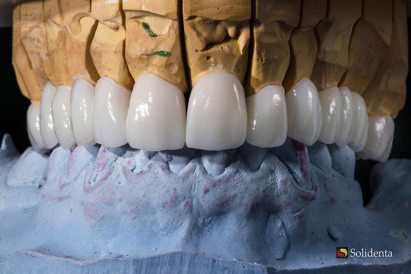 Cirkonio keramikos tiltas, cirokio keramikos vainikėlis, kaina sutartinė, priekiniai dantys, kruminiai dantys, balti dantys