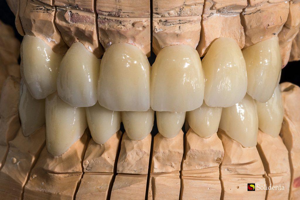 Cirkonio keramikos tiltas, priekiniai dantys, dantų protezų gamyba. Dantų technikas Kristupas Enriušaitis