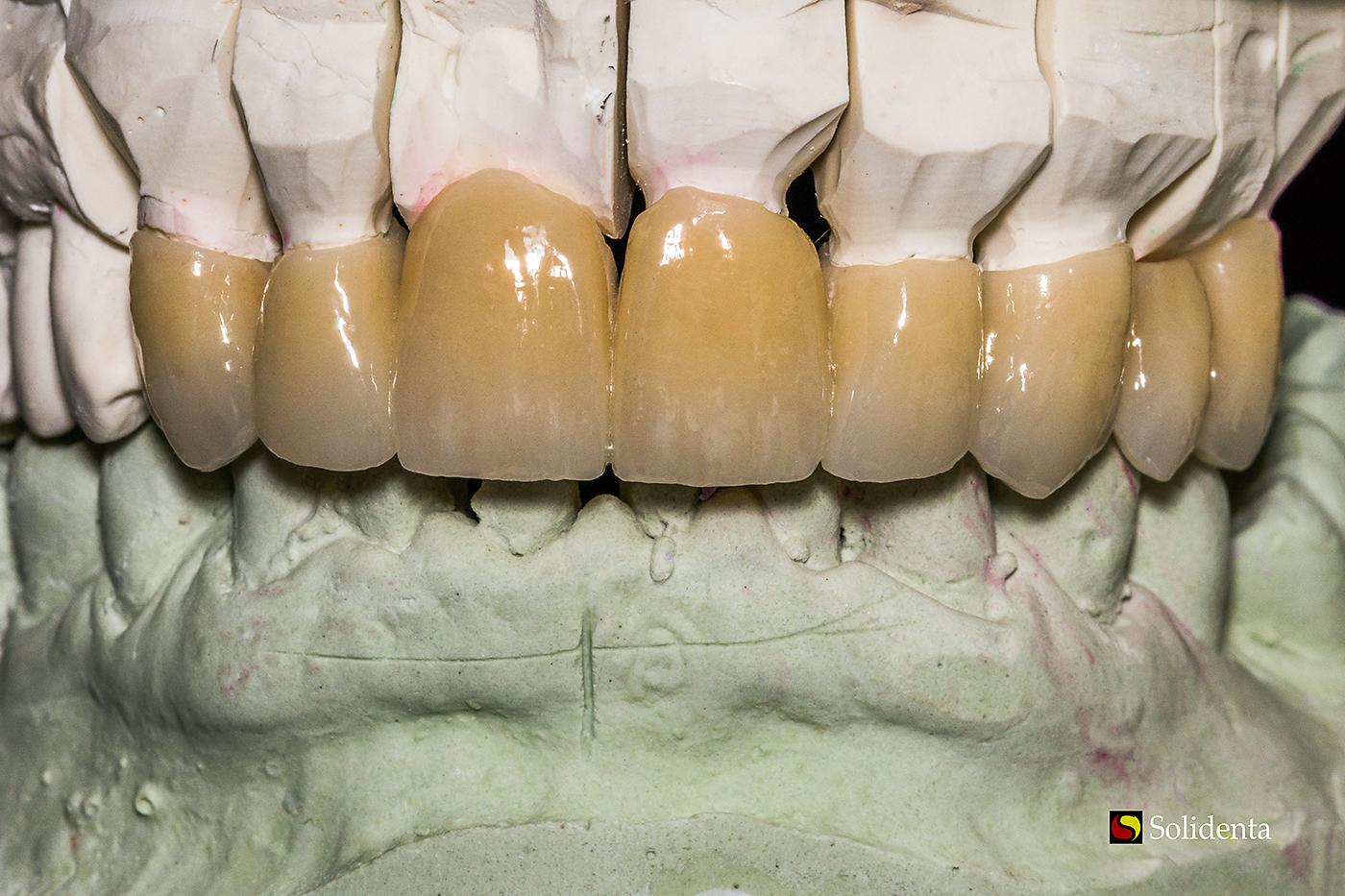 Priekiniai dantys - cirkonio keramikos vainikėlis. Neišimamų dantų protezų gamyba.