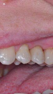 Cirkonio keramikos vainikėlis, dantų technikas Kristupas Endriušaitis, dantų protezų gamyba