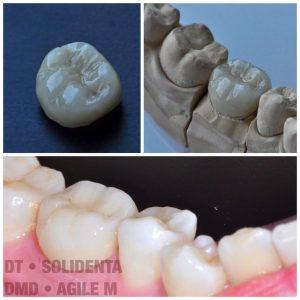 Dantų technikas Kristupas Endriušaitis, dantų protezų gamyba, cirkonio keramikos vainikėlis