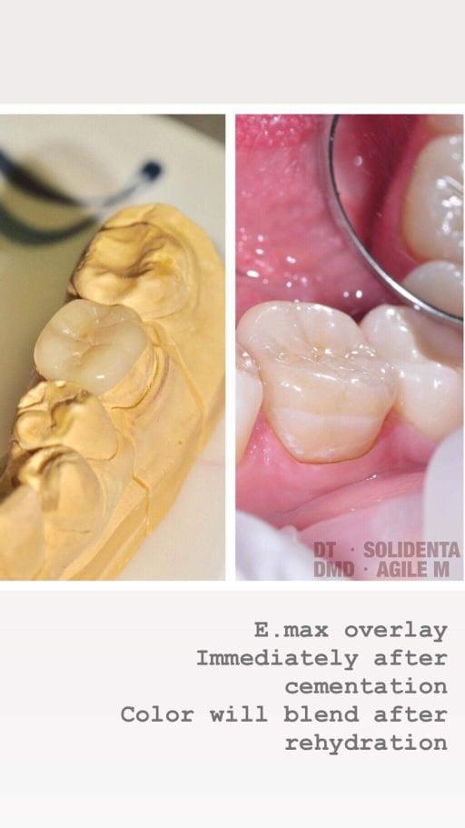 bemetale keramika emax, dantu technikas Kristupas Endriušaitis, dantu protezu gamyba
