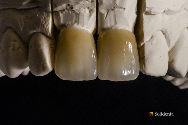 Cirkonio keramikos vainikėlis; priekiniai dantys