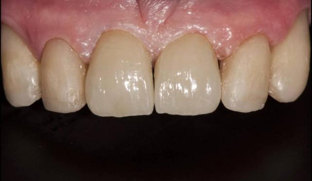 Cirkonio keramikos priekiniai dantys