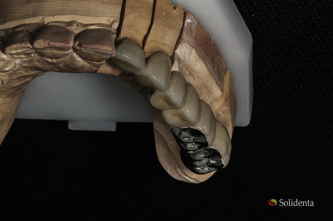 Metalo keramikos krūminiai dantys